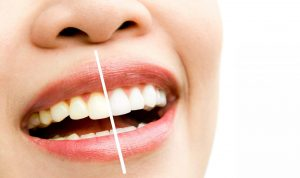 woman teeth before and after whitening. Over white background